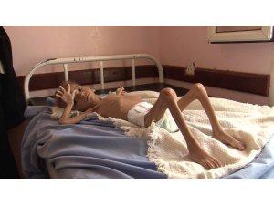 Yemen'de savaşın çocukları açlıkla mücadele ediyor