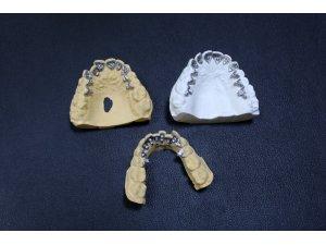 Türkiye'de ilk kez 'görünmez' diş teli üretildi