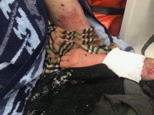 Kayseri'den sonra Kırşehir'de köpek saldırısı
