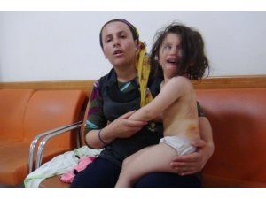 Sokak köpekleri 3 yaşındaki kıza saldırdı