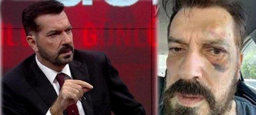 SONAR'ın sahibi Hakan Bayrakçı'ya saldırı!