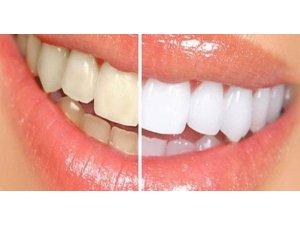 Dişlerde renk değişimine dikkat