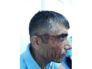 Osmaniye cezaevinde mahkum, bardakla 3 gardiyanı yaraladı