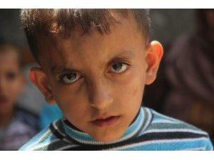 Kalbi delik Suriyeli çocuğun dramı