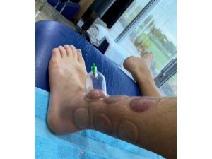 Pedro Henrique tedavi oluyor