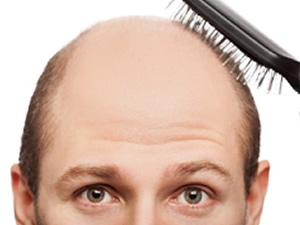 Saç dökülmesinin önüne geçmek elinizde