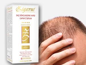 Genetik saç dökülmesinin çaresi bulundu