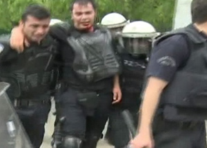 Polis memuru taşların hedefi oldu