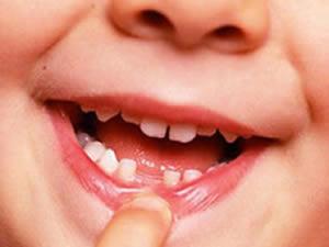 Çocukların diş bakımında dikkat edilecekler