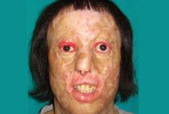 Yeni yüzüne 56 ameliyat geçirdikten sonra kavuştu