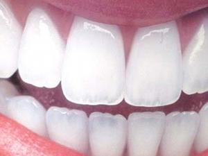 Çürük dişler için yeni tedavi