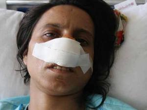 Eşinin burnunu kestiği iddiası
