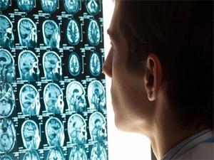 Beyin ölümü yanıltabiliyor