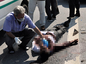 18 Yerinden bıçaklandı