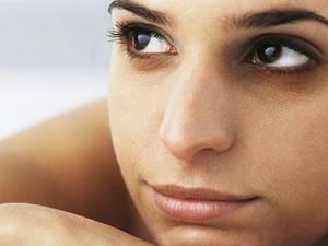 Göz altı morlukları için lazer tedavi