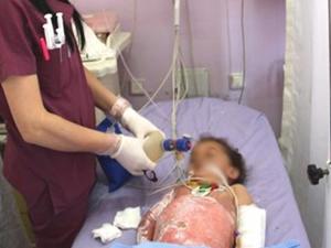 Sivas'ta 2 çocuk süt kazanına düştü