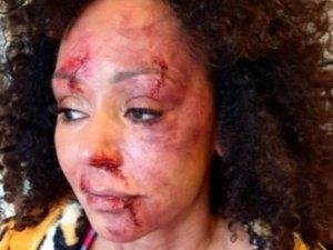 Eski Spice Girls'ten aile içi şiddete dikkat çeken klip