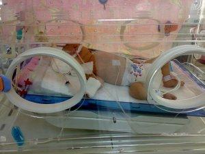 Mucize bebek hayatını kaybetti