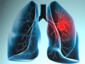 Akciğer hastalarına yeni umut!