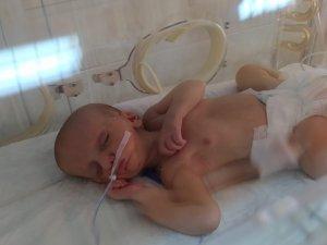MHP ve AK Parti, doğuştan dudakları yapışık olan Umut bebek için seferber oldu