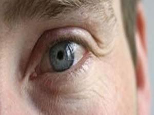 Gözler, beyin sağlığını belli ediyor