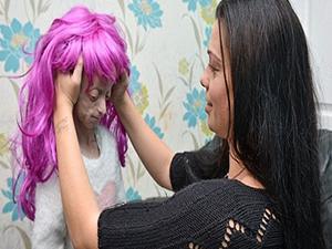 Saçı dökülen 11 yaşındaki kıza eziyet