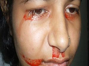 """Hintli kız """"kan"""" ağlıyor"""