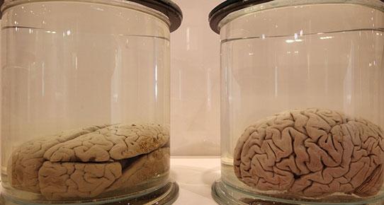 ABD'de beyin çaldılar