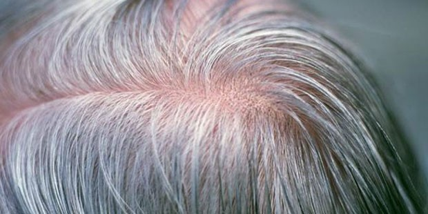 Bir gecede saçlar beyazlar mı?
