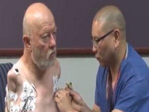 Kolları olmayan hastaya beynin yönetebileceği kollar takıldı