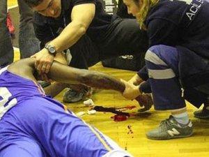 Basketbol maçında kolu kesildi