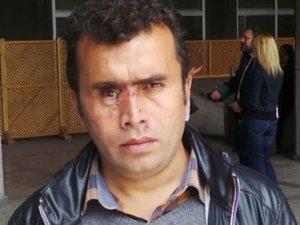İçişleri'nden Gezi'de gözünü kaybeden vatandaşa skandal yanıt!