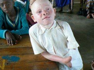 Tanzanya'da albinolara uygulanan eziyet bitmiyor!