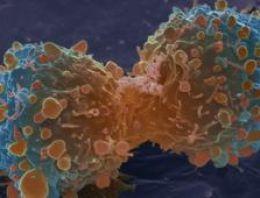 İngiltere Kanser riski altında