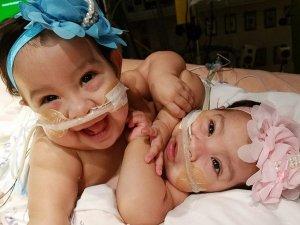 Yapışık doğan ikiz bebekler başarılı bir ameliyatla ayrıldı