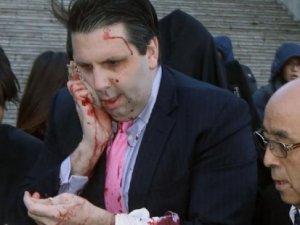ABD'nin Güney Kore Büyükelçisi Mark Lippert usturalı saldırı
