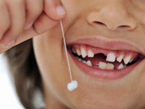 Dişleri nasıl döküldü?