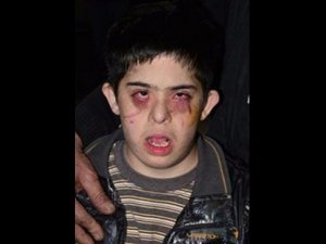 Down sendromlu çocuğu rehabilitasyon merkezinde dövdüler