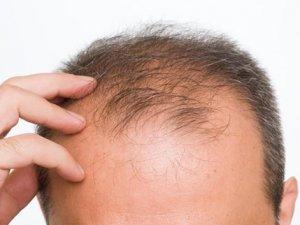"""Kellik sorununa etkili çözüm: """"Organik Saç Ekimi"""""""