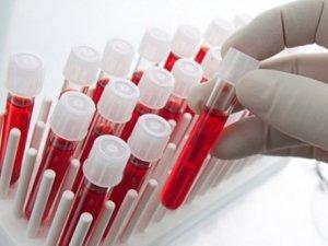 40 bin kök hücre örneği toplandı