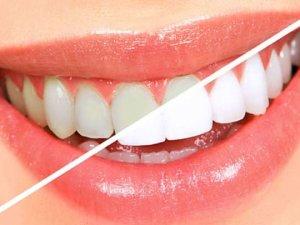 İşte dişleri beyazlatmanın 5 yolu