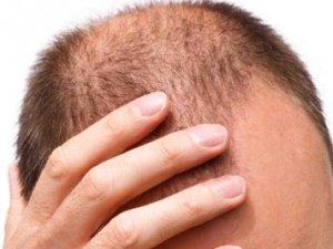 Saç dökülmesi hakkında doğru bilinen yanlışlar