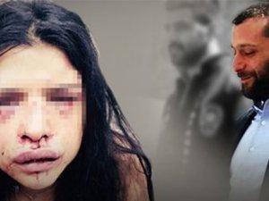 Onur Özbizerdik serbest kaldığı gün kız arkadaşını hastanelik etti