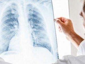 Ebus, akciğer kanserinde erken teşhis imkanı sunuyor