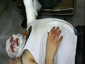 Halep'te Türk gazeteci füze saldırısında yaralandı!