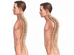 Vücut duruşunu düzeltme yöntemleri