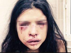 Melis Çakır'ın annesi isyan etti: Onur kızımı öldürecek