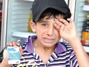 Bergüzar Korel'den Suriyeli çocuğa destek
