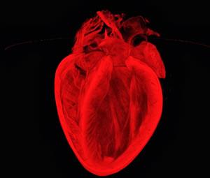 Tıp dünyasını şaşırtan kalp