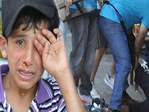İzmiir'de dayak yiyen Suriyeli çocuk sokaklara geri döndü